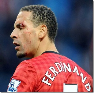 Ferdinand Injury